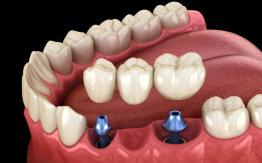 implant concept