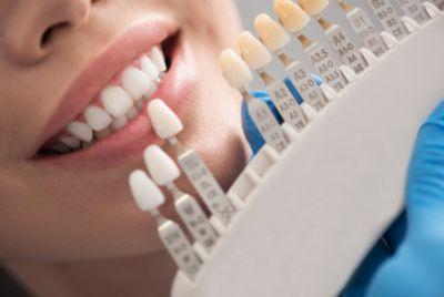 Dental crown situating