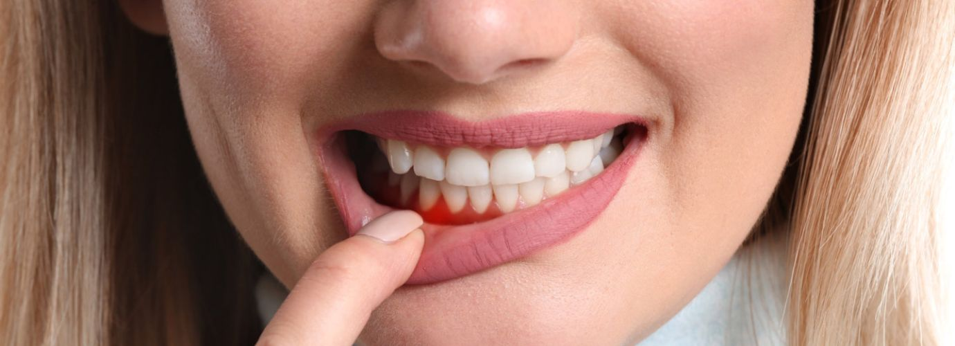 Woman with gum inflammation