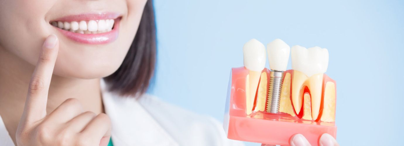 Dentist take implant tooth