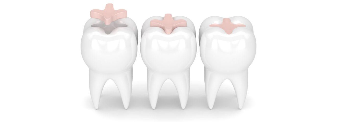 Dental inlays concept