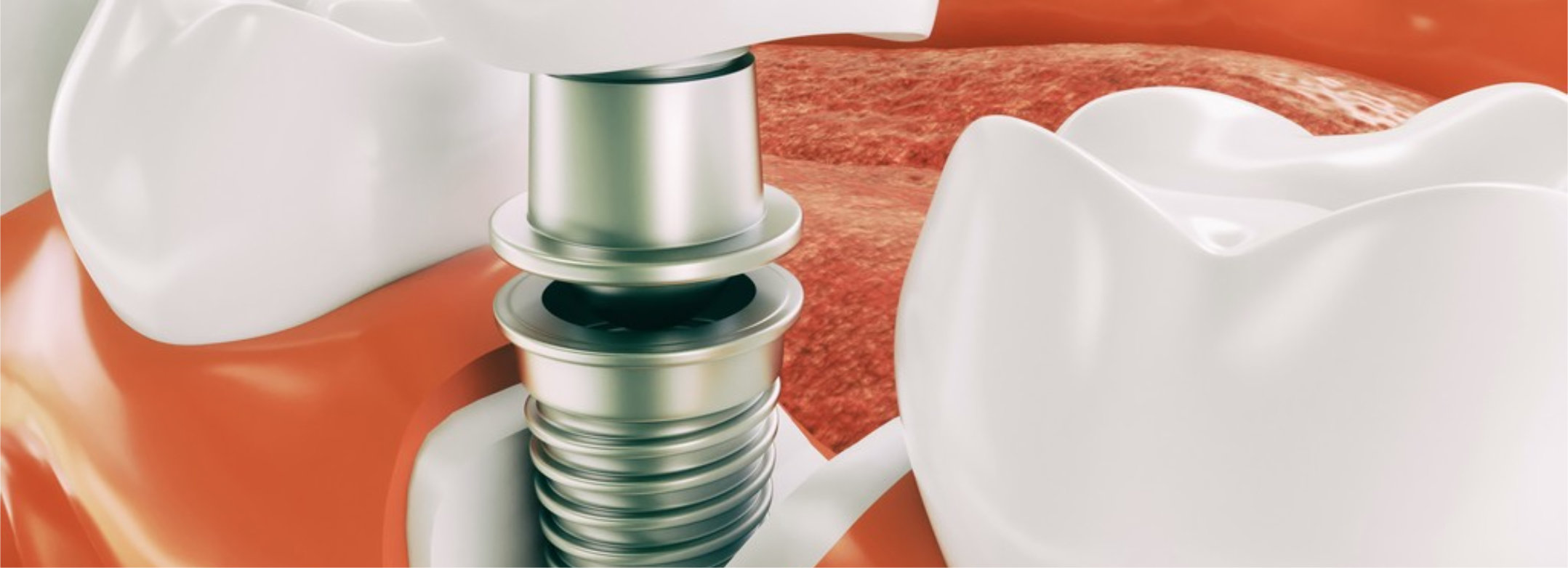 Dental implant on the example of a jaw model