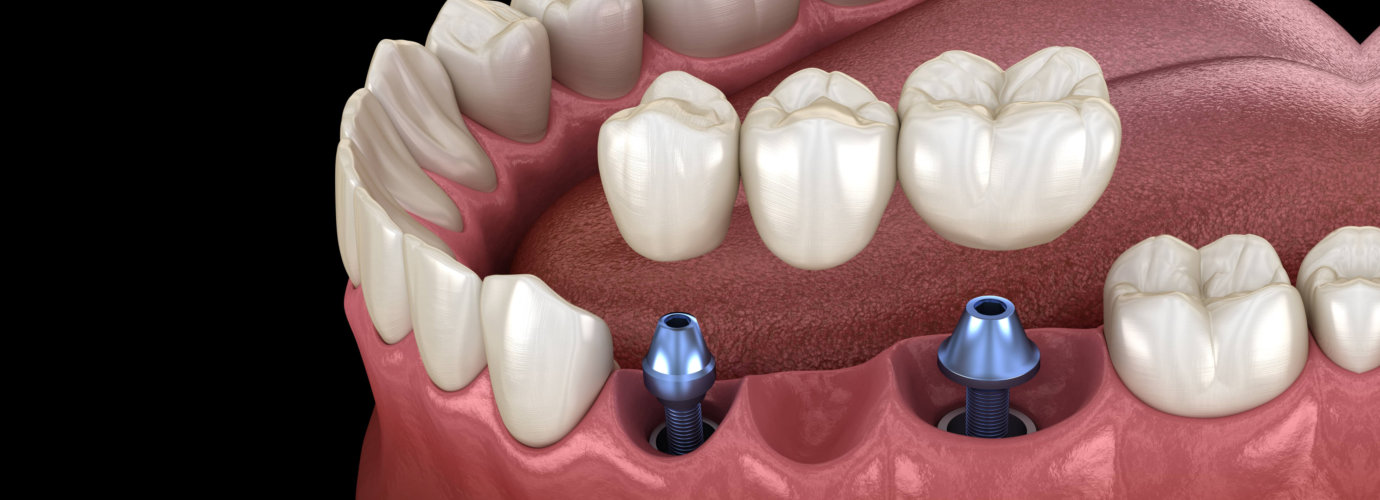 dental bridge supported by implants