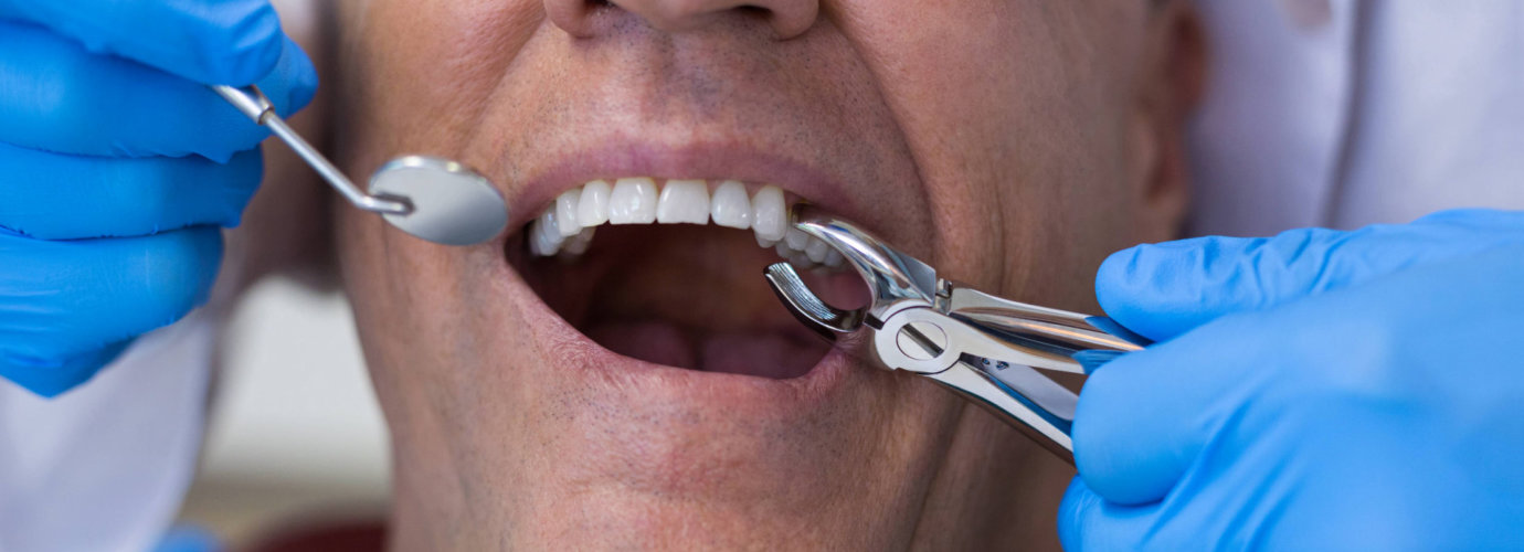 dentist removing patient's tooth